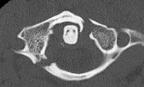 Medium_radiology_of_cervical_spine
